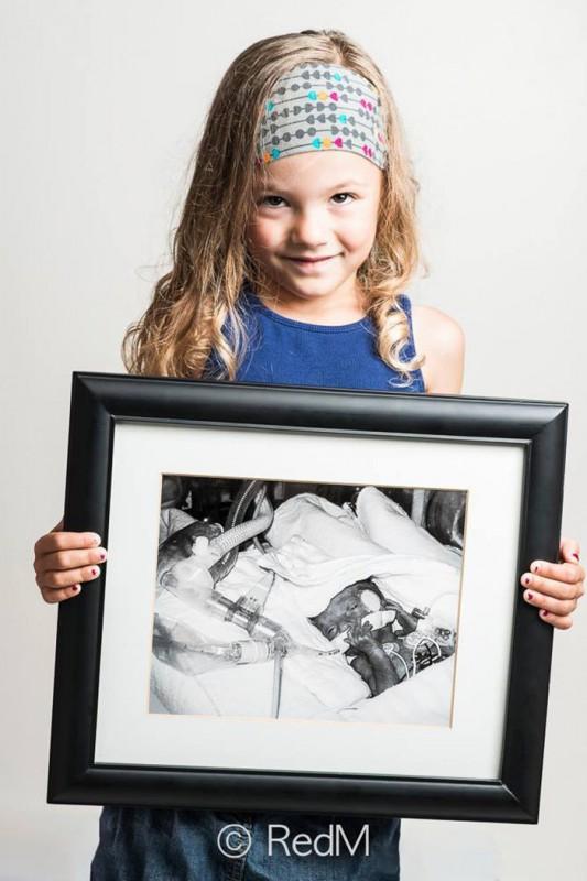 До и после: сильные фото детей, которые появились на свет раньше срока (16 фото)
