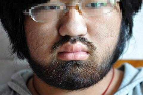 Молодая китаянка заросла волосами