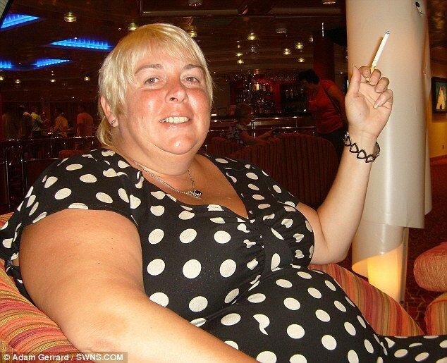 Бандажирование желудка сделало из женщины дистрофика...
