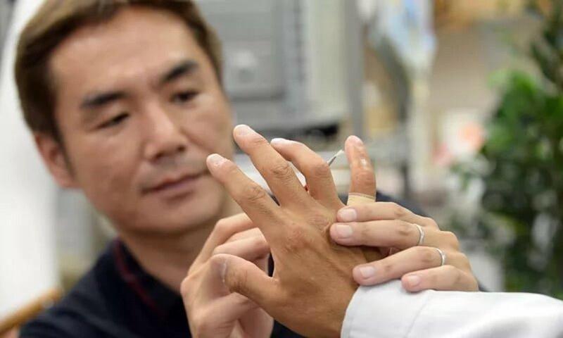 Протезирование отрезанных пальцев для японской Якудзы 0 13c093 450f8329 XL