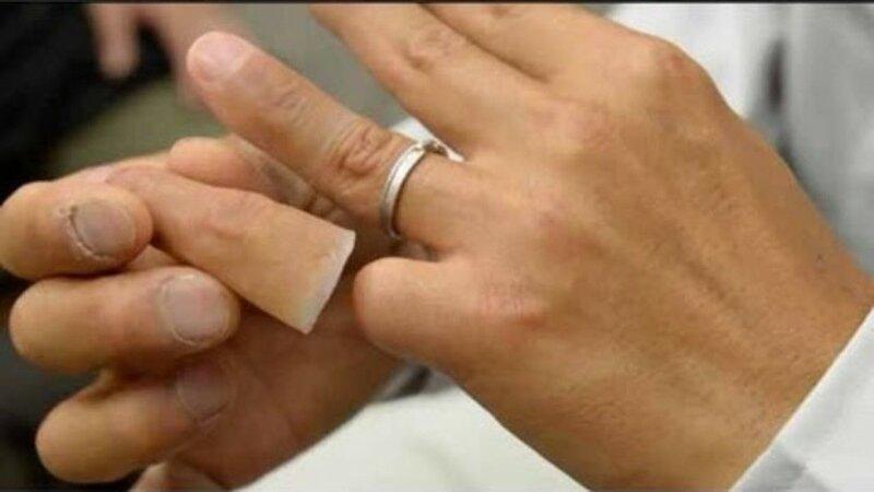 Протезирование отрезанных пальцев для японской Якудзы 0 13c094 3a3f1841 XL
