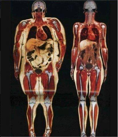 Снимок просканированного тела 115-килограммовой и 55-килограммовой девушки