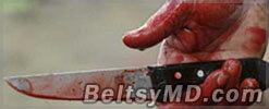 В Данченах мужчина убил и сжёг двух женщин в порыве ревности