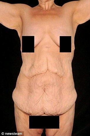 как похудеть с помощью иглоукалывания в мариуполе
