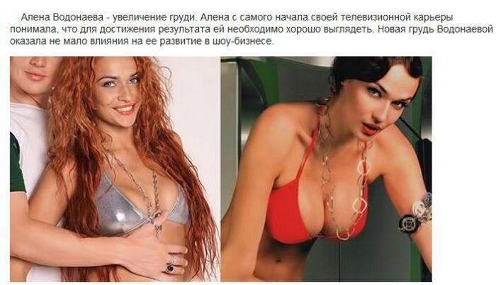 Пластические операции на телепроекте Дом-2