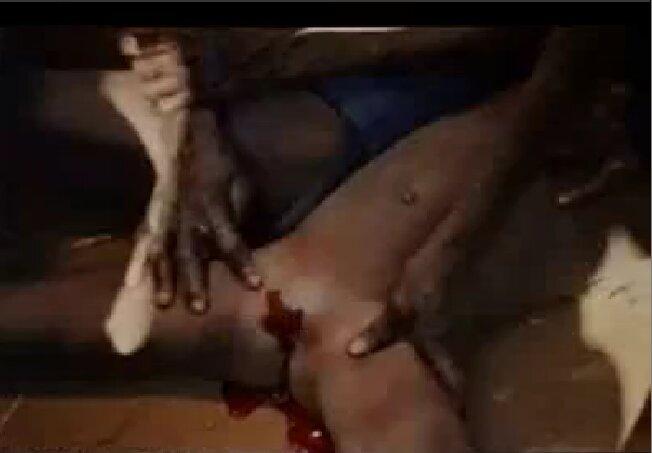 Женщина пизда после обрезания фото