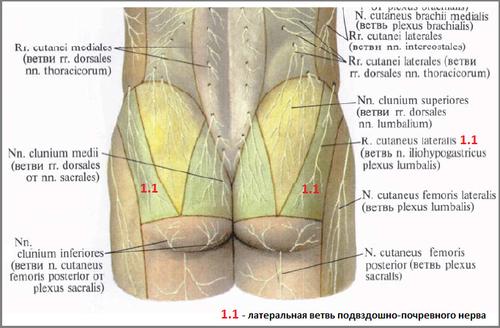невринома при повреждении повздошно подчревного нерва