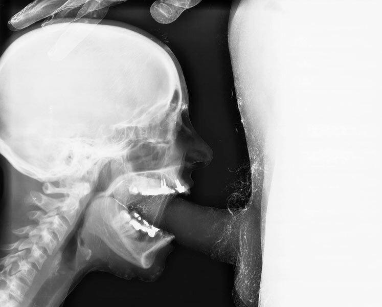 Оральный секс фото рентген фото 271-282