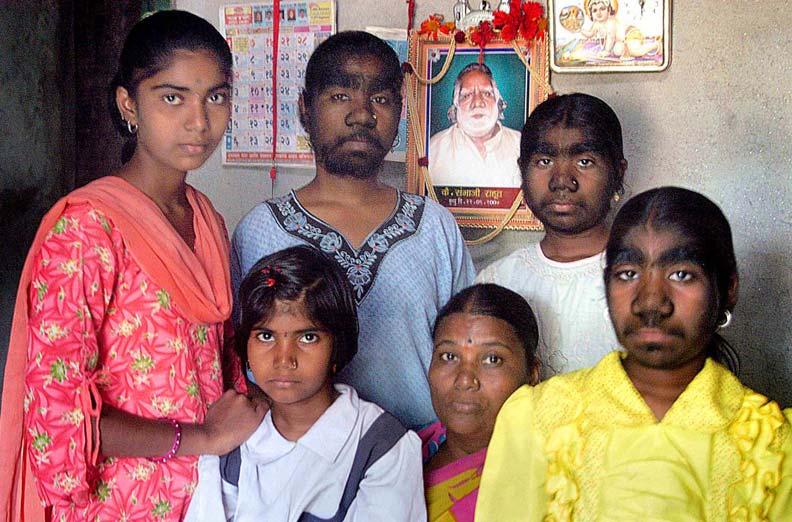 семья Сангли - сестры с синдромом оборотня