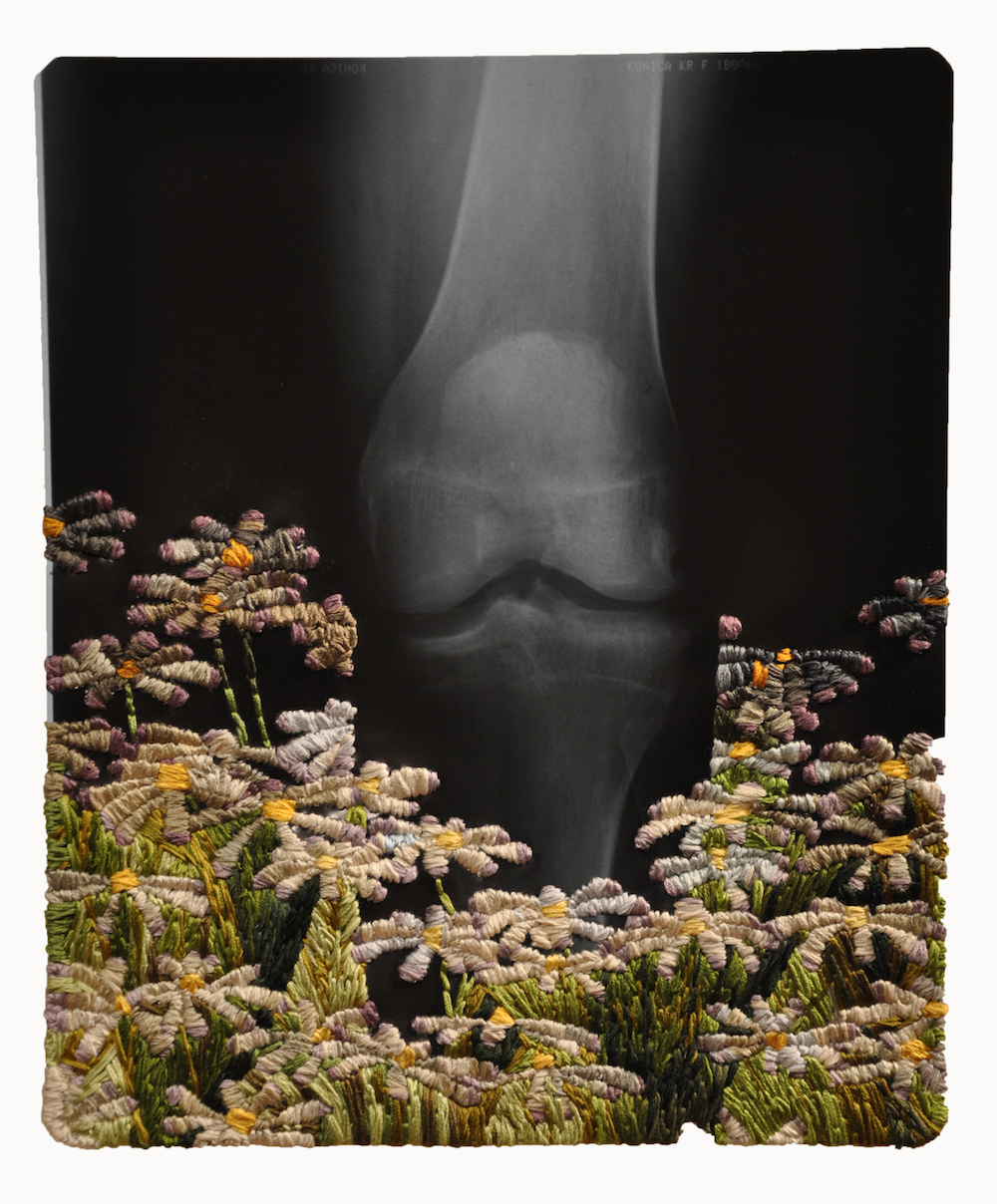 """Knee and Daisies"""