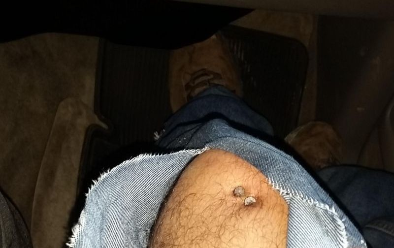 Строитель загнал в колено два гвоздя, но ему повезло