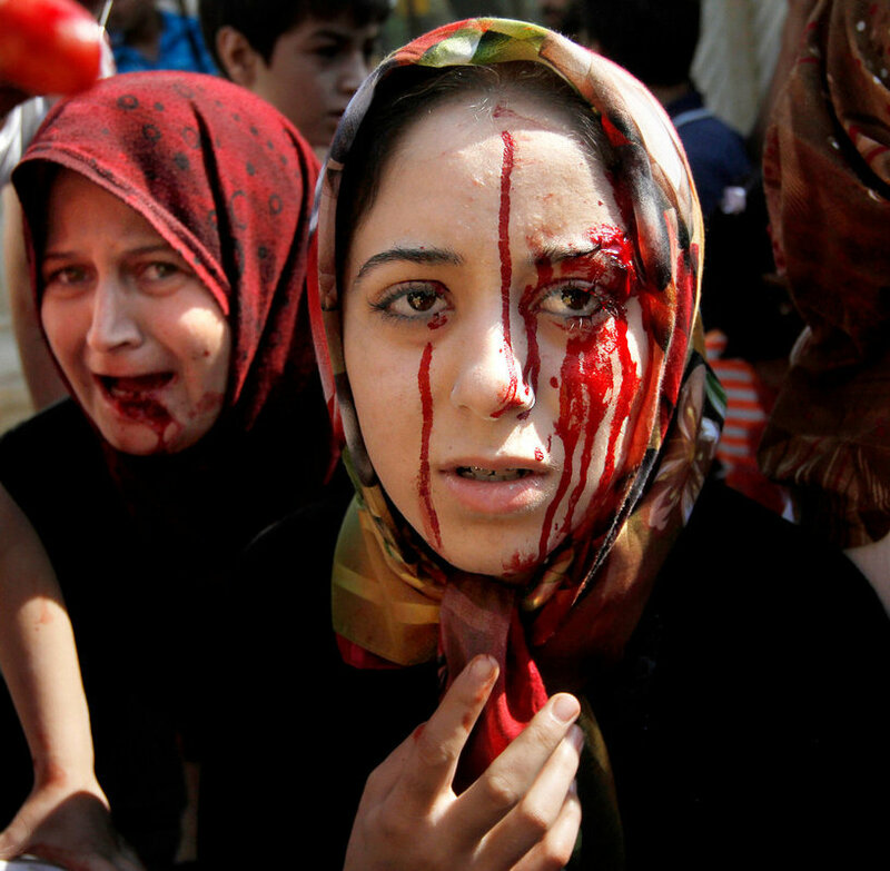 Injured syrian women arrive at a field hospital after an air strike