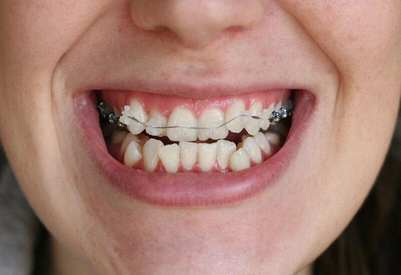 Резекция верхушки корня зуба отзывы и рекомендации для