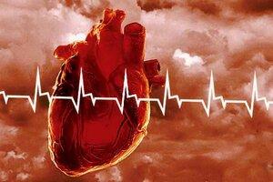 Учёные: Потеря работы приводит к инфаркту