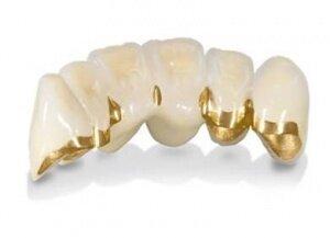 82-летнюю женщину убили из-за золотых зубных коронок