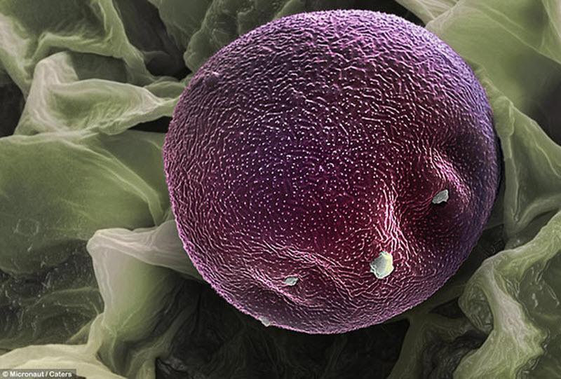 9. Пыльца с ольхи. (MICRONAUT / CATERS NEWS)