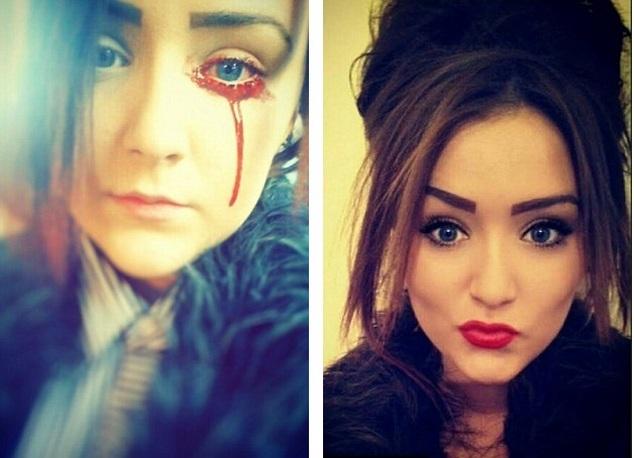 Врачи не могут помочь девушке с загадочным кровотечением из глаз, ушей, носа и языка