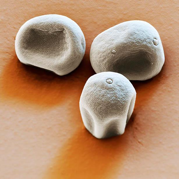 1. Фотография пыльцы травы в псевдоцветах, сделанная с помощью растрового электронного микроскопа. (