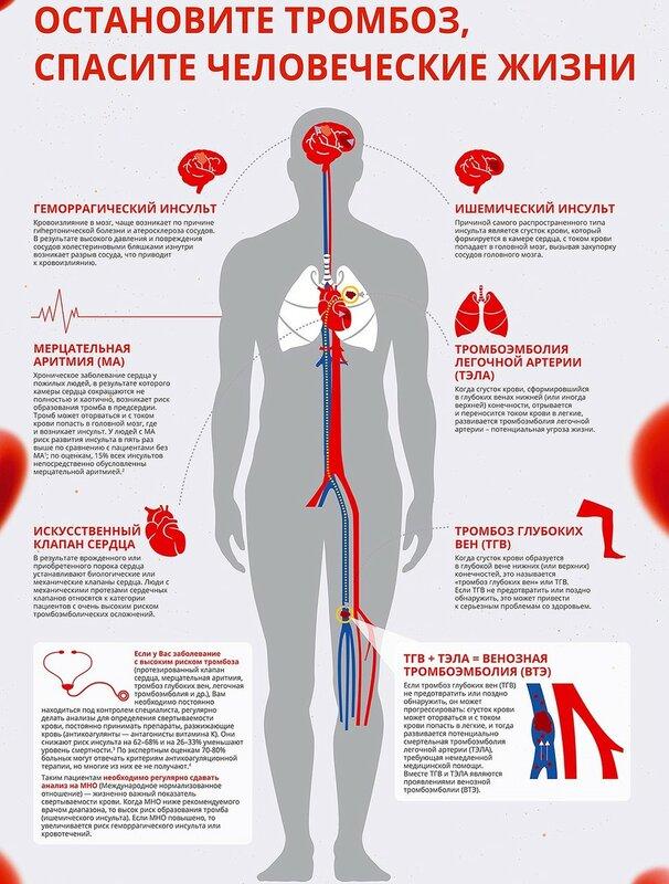 Тромбозы_Инфографика.jpg