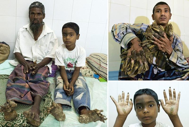 Семья из Бангладеш превращается в дерево