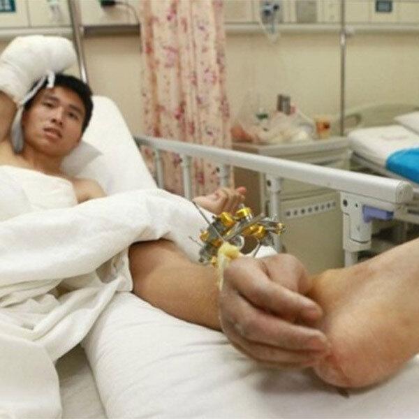 Китайские хирурги спасли кисть пациента, пришив ее… к ноге