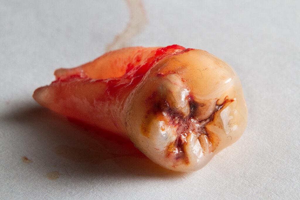 удаленный зуб мудрости фото