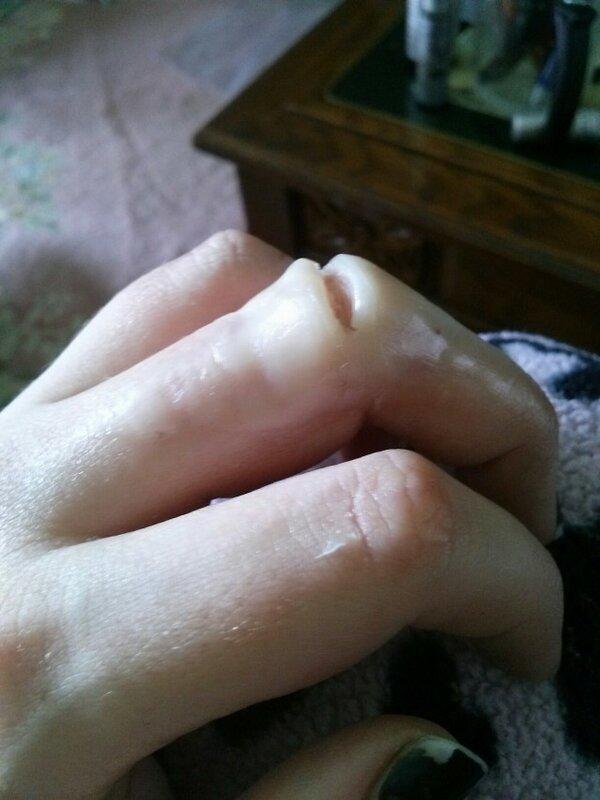 """""""Ампутация пальца"""" или как напугать друзей"""