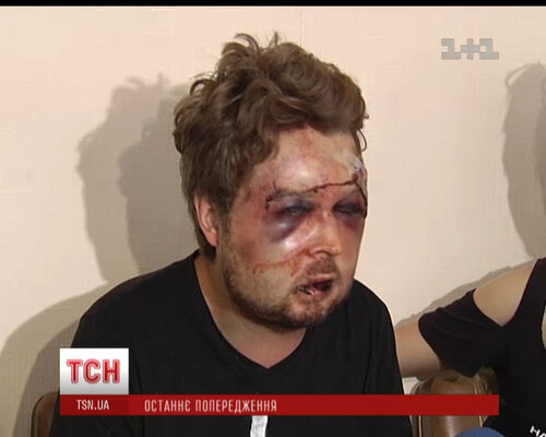 """Избитый политолог женского движения """"FEMEN""""."""