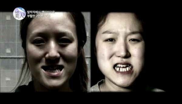Близняшки из Кореи до и после пластических операций (11 фото)