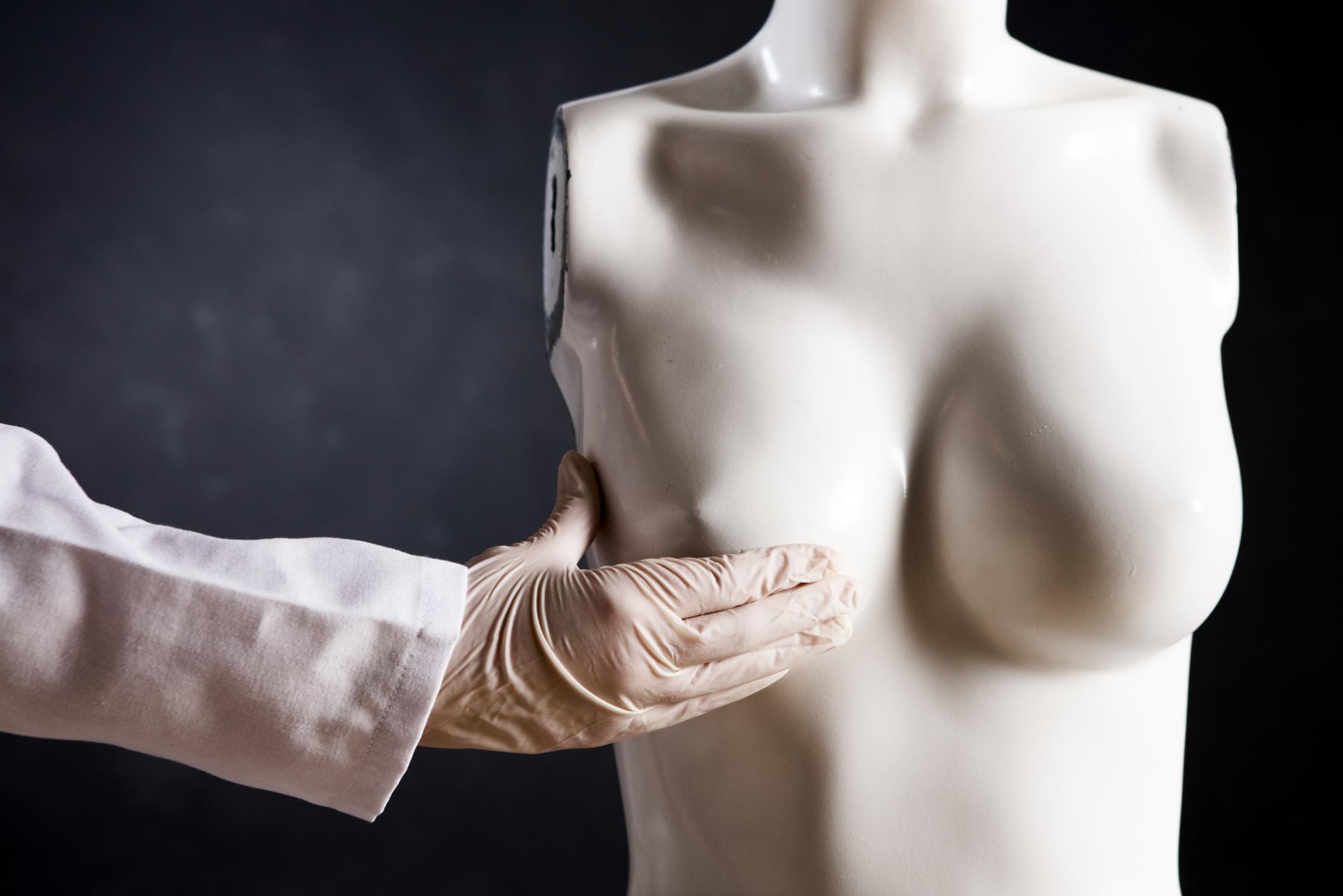 Рак молочной железы (1 фото)