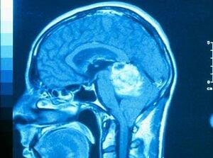 Стадия применения нейрохирургии опухоли головного мозга