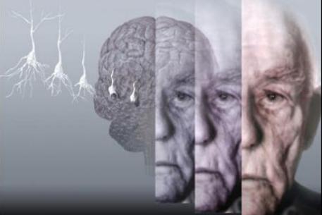 Практически все испытания лекарственных средств против Альцгеймера потерпели провал
