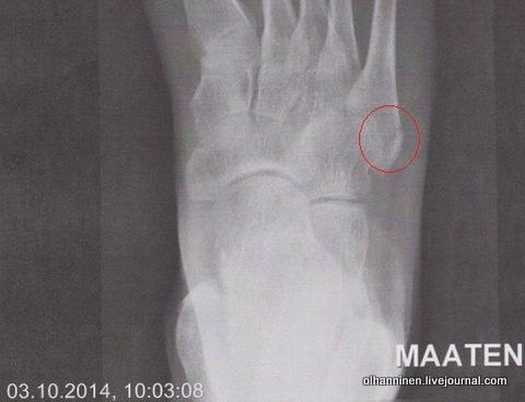 не срастается перелом пятой плюсневой кости