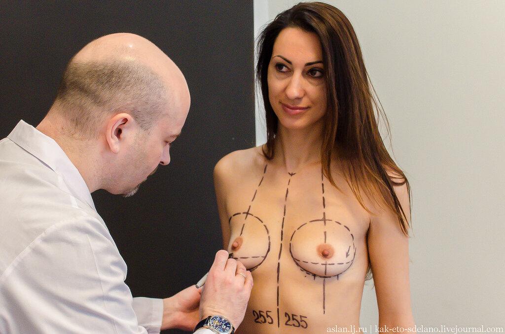 Как увеличивают грудь