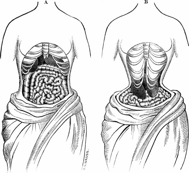 органы в корсете.jpg