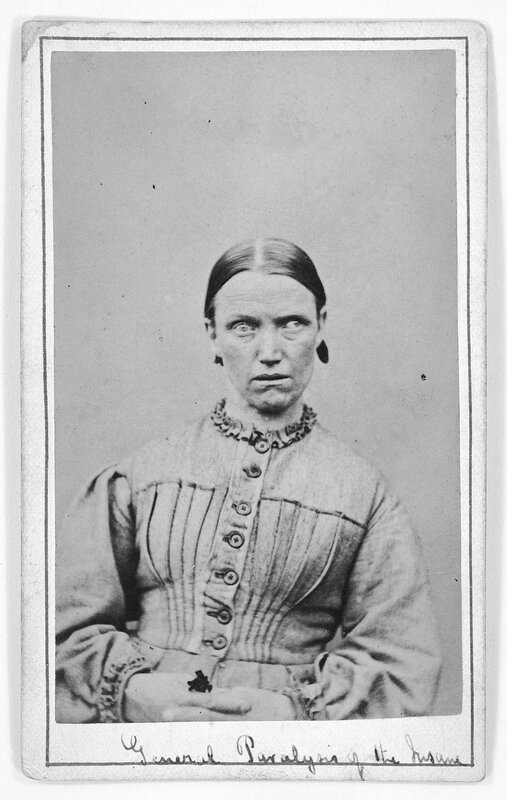 L0019063 Woman suffering from general paralysis; c. 1869