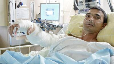 Мужчина 16 километров вез свою отрубленную руку