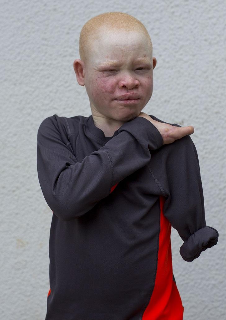 Эммануэль Фесто пережил нападение в 2007 году. Ему отрубили руку по локоть и отрезали пальцы на друг