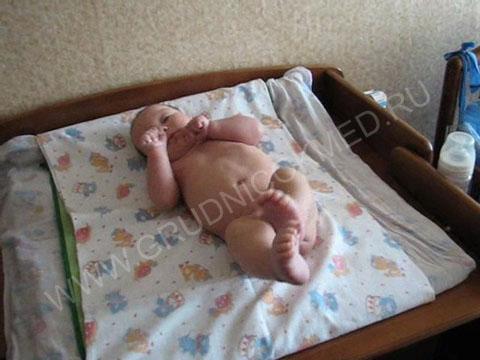 Синдром мышечной дистонии до массажа ребенка (3 месяца).