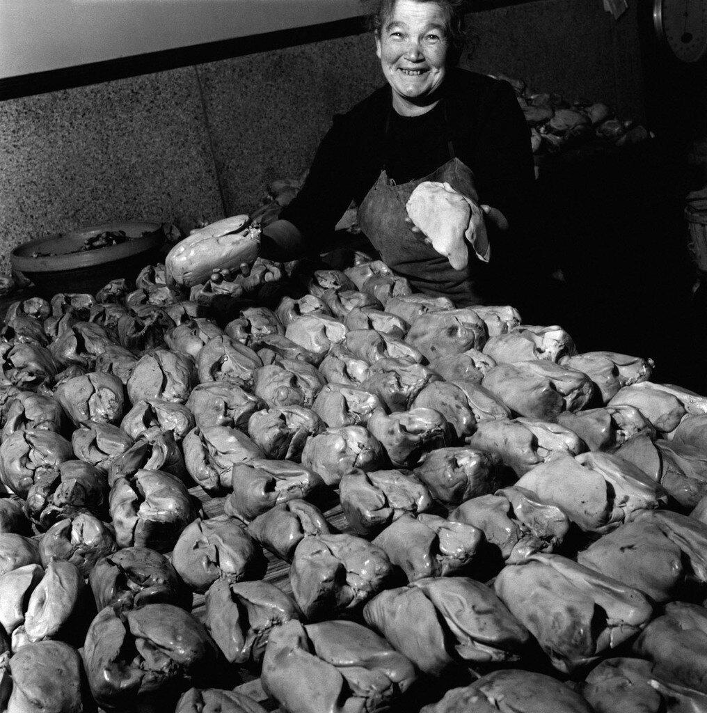 1948. Жирная печень