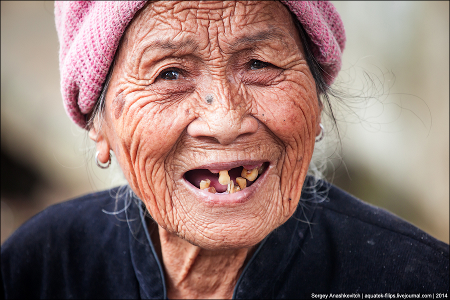 Китайские зубы