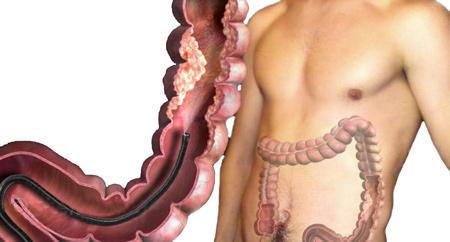 Колоноскопия кишечника что это?