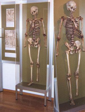 vesaliusesskeletons.jpg