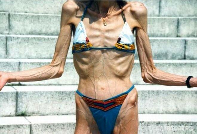 Модельная внешность. Ужасные фото девушек, истощивших себя диетами