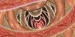 Apophysis-080325-1.png