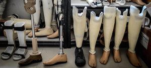 Создан протез, подсоединяющийся к кости ноги