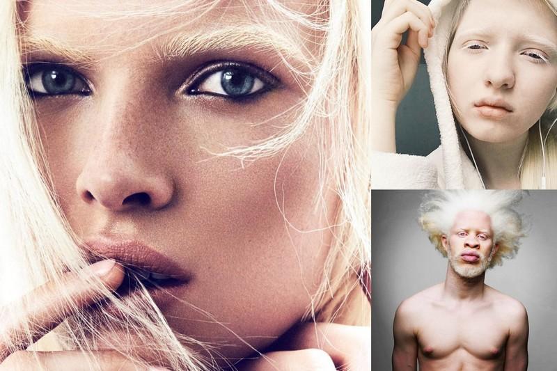 Модели-альбиносы, произведшие фурор в мире моды