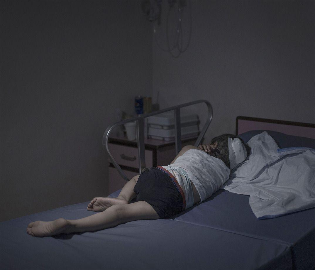 3. Мояд, 5 лет, спит в больнице в Аммане, Иордания. Они с матерью шли на рынок в Сирии, когда рядом