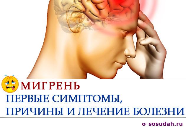 Мигрень — первые симптомы и причины болезни