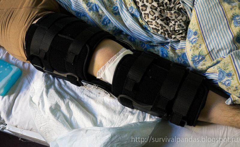 Цито артроскопия коленного сустава болят все суставы в непогоду что можетпомочь
